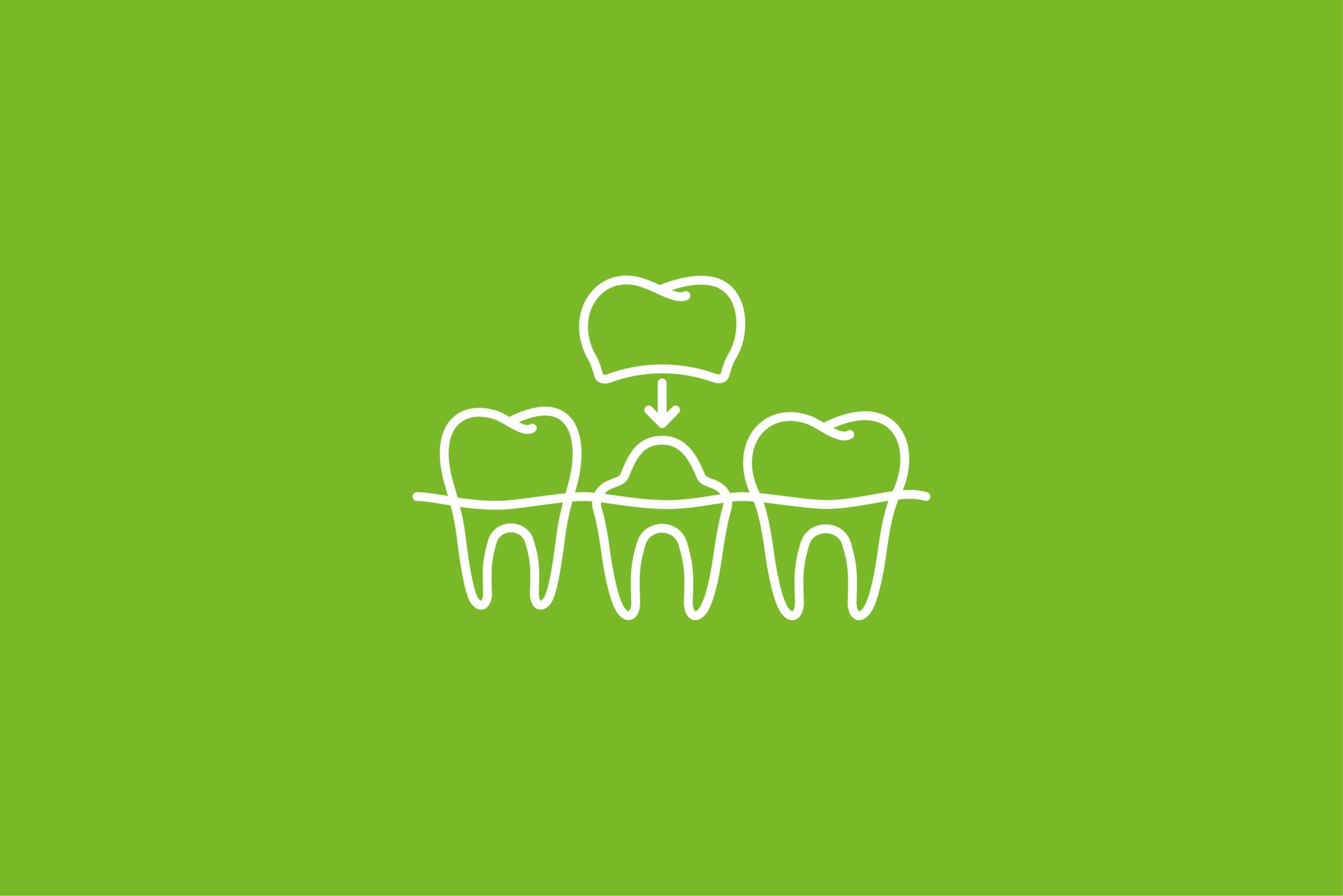 Zahnarzt Potsdam - Siemund / Hashemi - Leistungen - digitale Behandlung