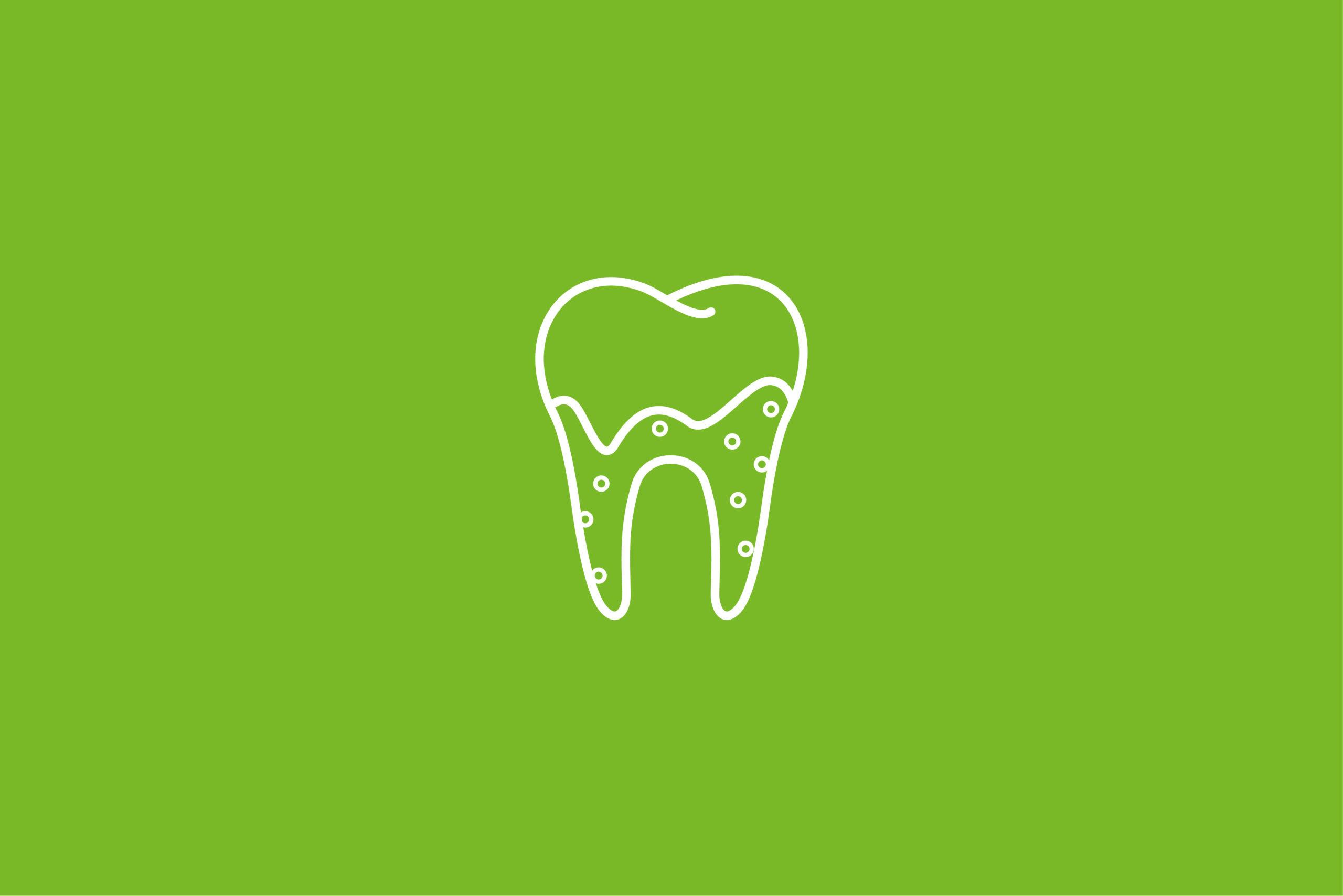 Zahnarzt Potsdam - Siemund / Hashemi - Leistungen - Parodontologie